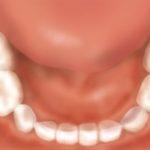 3歳児のお口-下顎